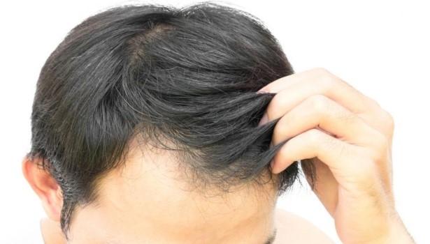 Siwe włosy męskie – jak im zapobiec